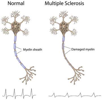 multiple_sclerosis_myelin