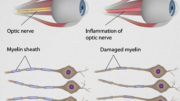 OpticNeuritis